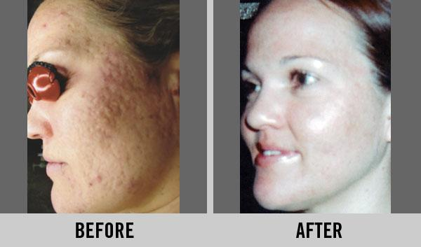 Before & After Photos: Skin Care & Facials, Cary NC